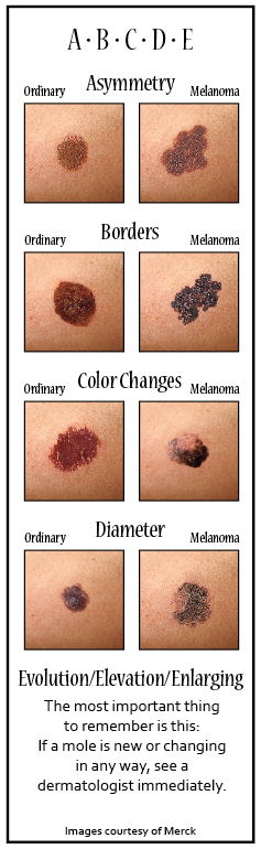 To Your Health! Melanoma: Is It or Isn't It?